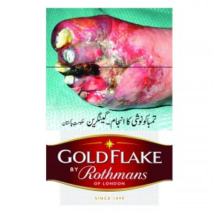 Gold-Flake-20Sc-01